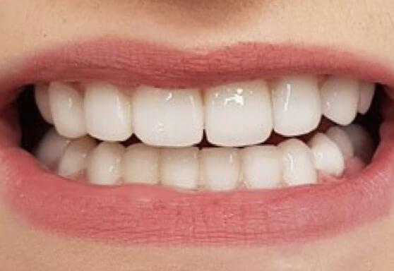 Реставрация зубов материалом Enamel Plus HRi