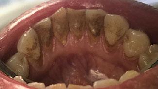 Профессиональная 5-ти этапная чистка зубов