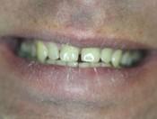 Восстановление режущего края центральных зубов
