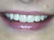 Рестоврация зубов