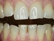 Проведена эстетическая реставрация зубов путем выполнения не прямых виниров