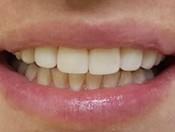 Реставрация центральных зубов материалом Enamel Plus HRi