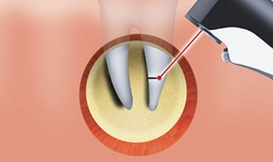 Когда, зачем и как проводится резекция верхушки корня зуба