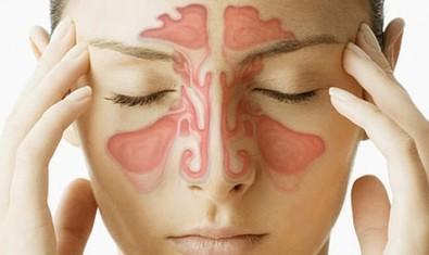 Одонтогенный гайморит: почему в этом случае нужно лечиться у стоматолога?