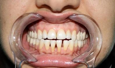 Оголение корней зубов