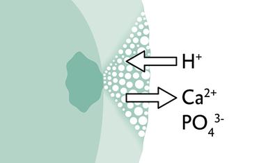 В случае возникновения кариеса, кариогенные кислоты атакуют эмаль и вытягивают минералы