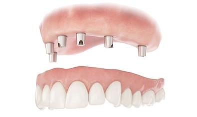Телескопический зубной протез