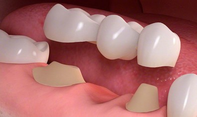 Традиционный зубной мост с опорой на свои зубы