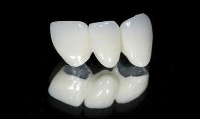 Металлокерамический зубной мост