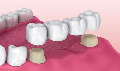 Традиционный зубной мост при отсутствии 2-х зубов