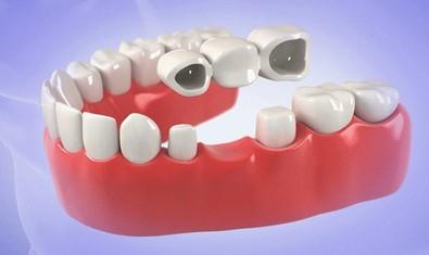 Традиционный зубной мост при отсутствии 1 зуба