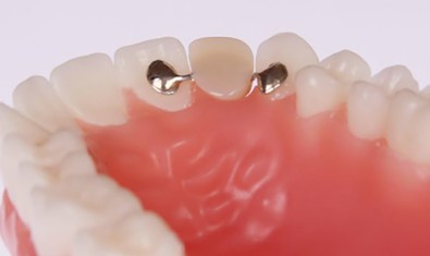 Зубной мост «Мэриленд»