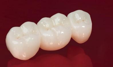 Циркониевый зубной мост