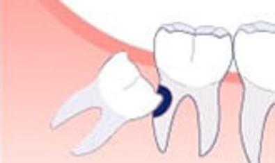 Кариес. Зуб мудрости, который упирается в соседний моляр, может привести к серьезному повреждению обоих зубов
