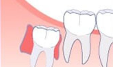 Киста. Образование кисты может разрушить кость и повредить соседние зубы