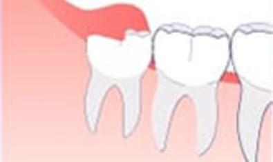 Инфекция. Если зуб мудрости упирается в десну, то вокруг верхней части зуба может образоваться инфекция
