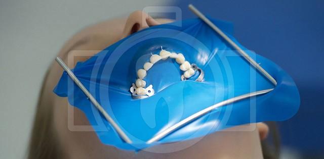 Коффердам (латексная завеса) - изолирует нужный зуб при лечении