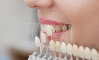 Что такое художественная реставрация зубов, чем она отличается от пломбы?