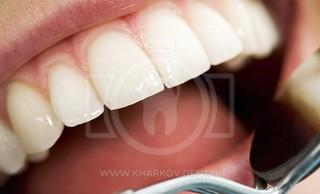 Причины разрушения эмалевого слоя. Методы восстановления эмали зубов