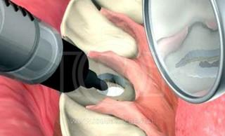 Белизна изнутри: внутриканальное отбеливание зубов или эндоотбеливание