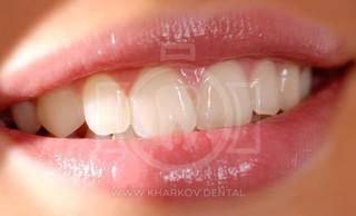 Чистка и уход за зубными протезами, хранение зубных протезов