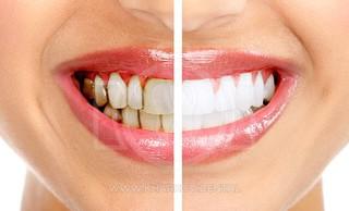 Причины образования зубного камня