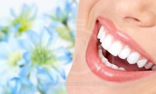 Домашнее отбеливание зубов. Профессиональное отбеливание у стоматолога