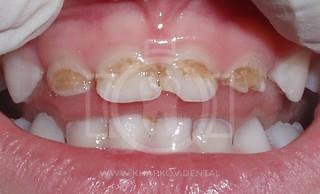 Гипоплазия эмали зубов у детей