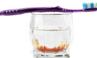 Как правильно ухаживать за зубными протезами