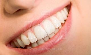 Как ставится коронка на зуб