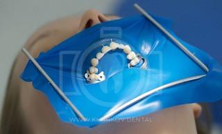 Коффердам – лечение зубов быстро, надежно, удобно