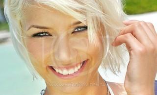 Одномоментная имплантация после удаления зуба – новые зубы за один день!