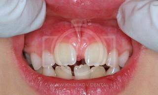 Пластика уздечки верхней губы и языка детям