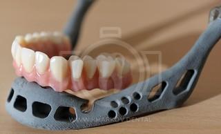 Применение 3D принтеров в стоматологии