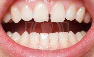 Промежутки между зубами: диастема, тремы