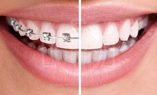 Виниры на кривые зубы