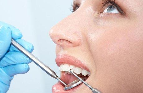 Что такое кариес зубов? Методы диагностики кариеса