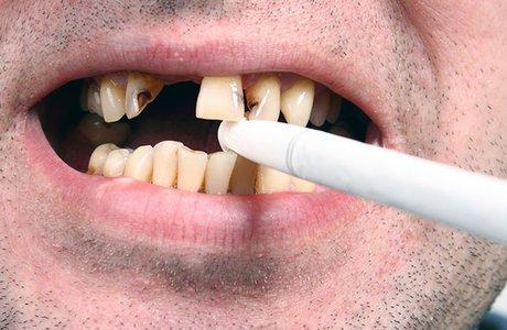 Как защитить зубы курильщика