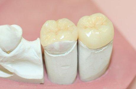 Керамические вкладки как лучший способ реставрации зубов