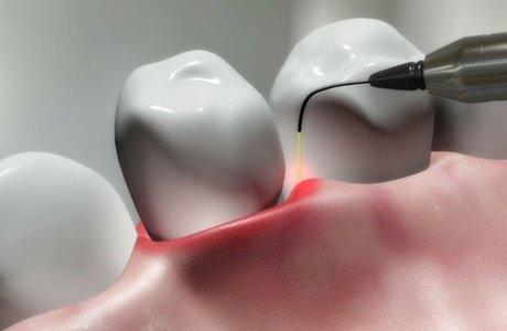 Лазерное лечение в стоматологии