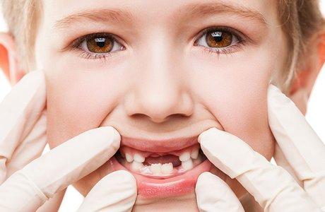Лечение гингивита у детей
