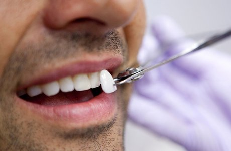 Люминиры на зубы: показания, преимущества, срок службы, стоимость