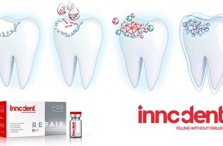 Препарат InnoDent – природная регенерация зубной эмали