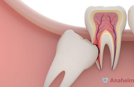 Проблемы, которые может вызвать зуб мудрости