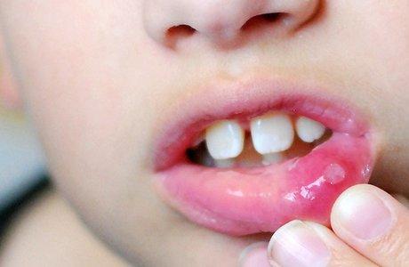 Стоматит у детей: виды, лечение и профилактика
