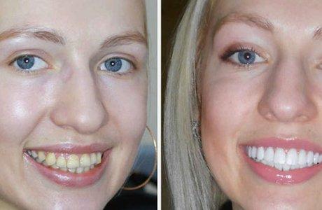 Удлинение зубов