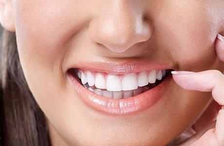 Виниры на передние зубы, виниры на кривые зубы
