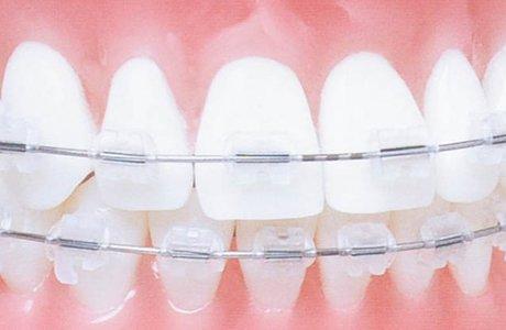 Лечение подвижности зубов при пародонтите методом шинирования