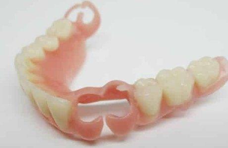 Съемные зубные протезы нового поколения Квадротти